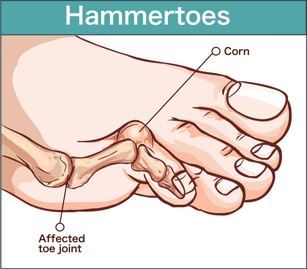 What-is-Hallux-Valgus-Bunion-hammertoes