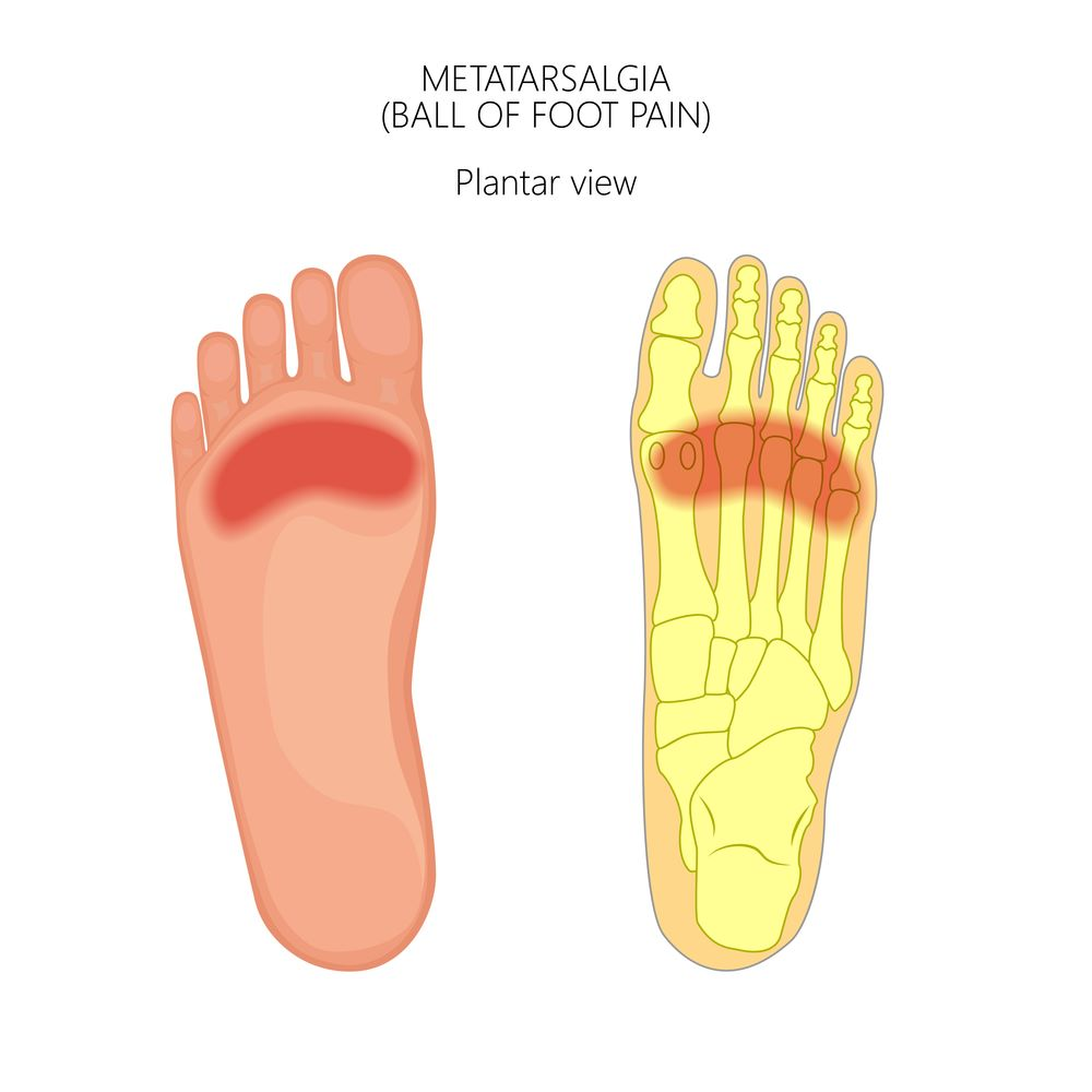 What-is-Hallux-Valgus-Bunion-metatarsalgia