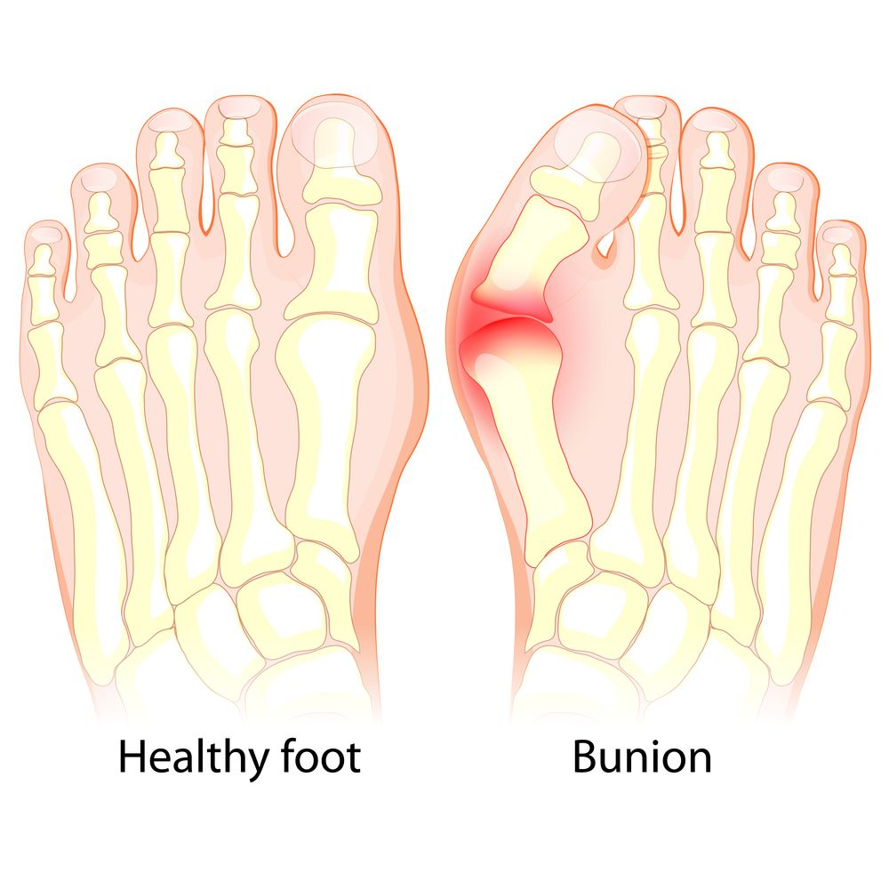 What-is-Hallux-Valgus-Bunion