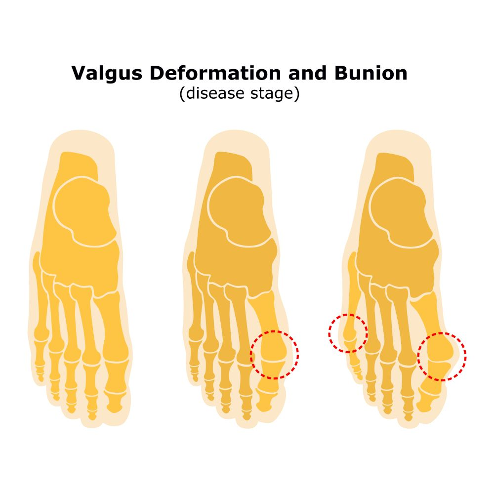 stages-of-Hallux-Valgus-Bunion