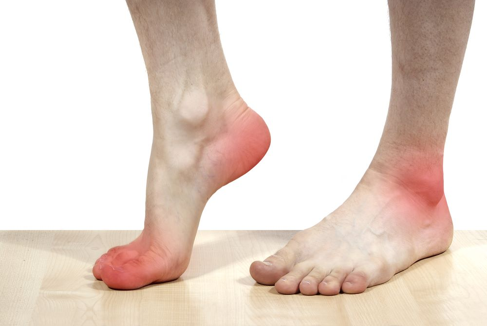 symptoms-of-Hallux-Valgus-Bunion